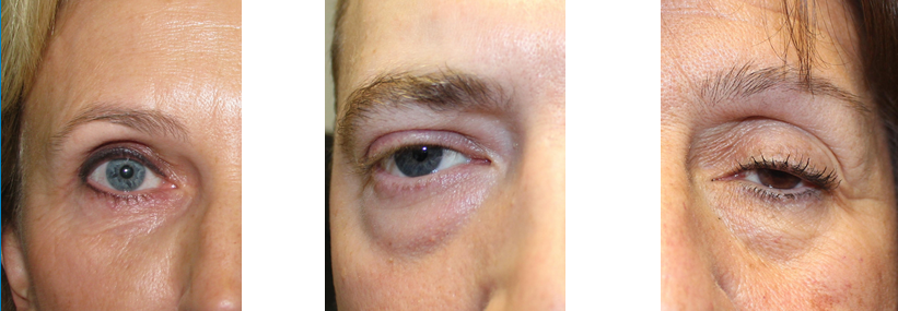 how do i know if insurance covers eyelid surgery in nj