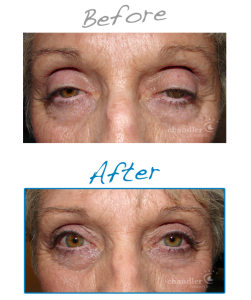 droopy eyelid surgery- before and after