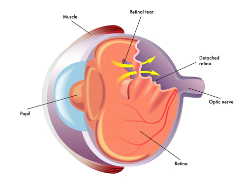 Signs and Symptoms of Retinal Detachment | BCEYE | Board Certified Ophthalmologists