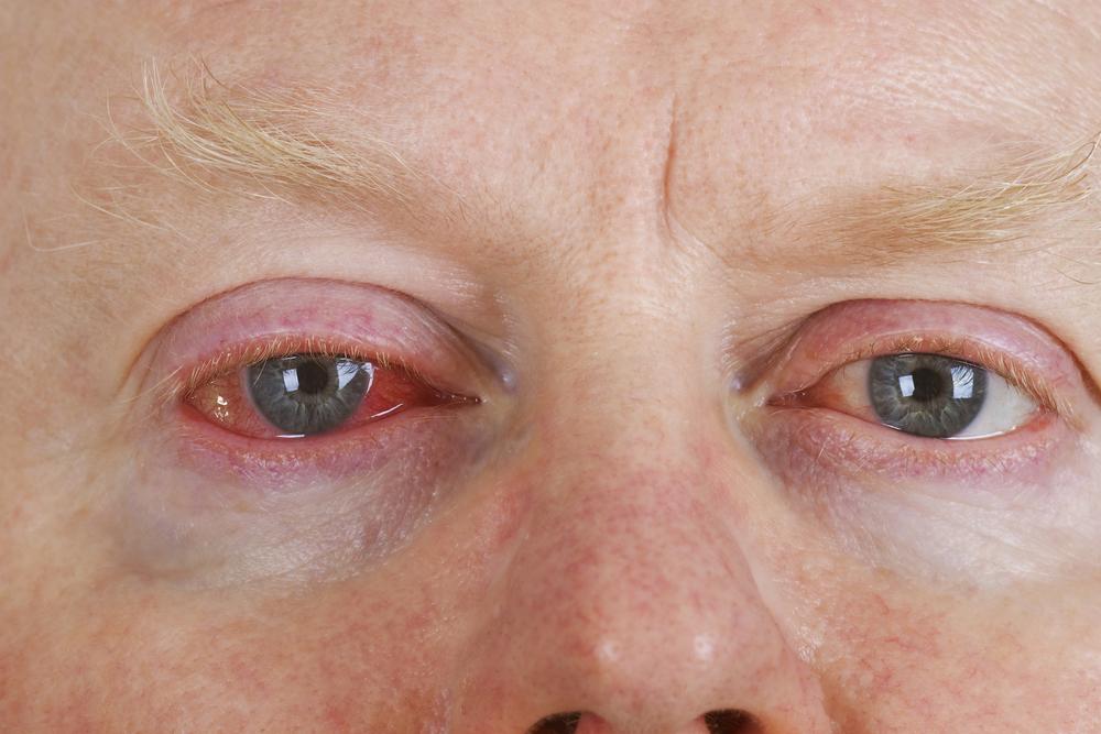 What is Pink Eye? | Burlington County Eye Physicians