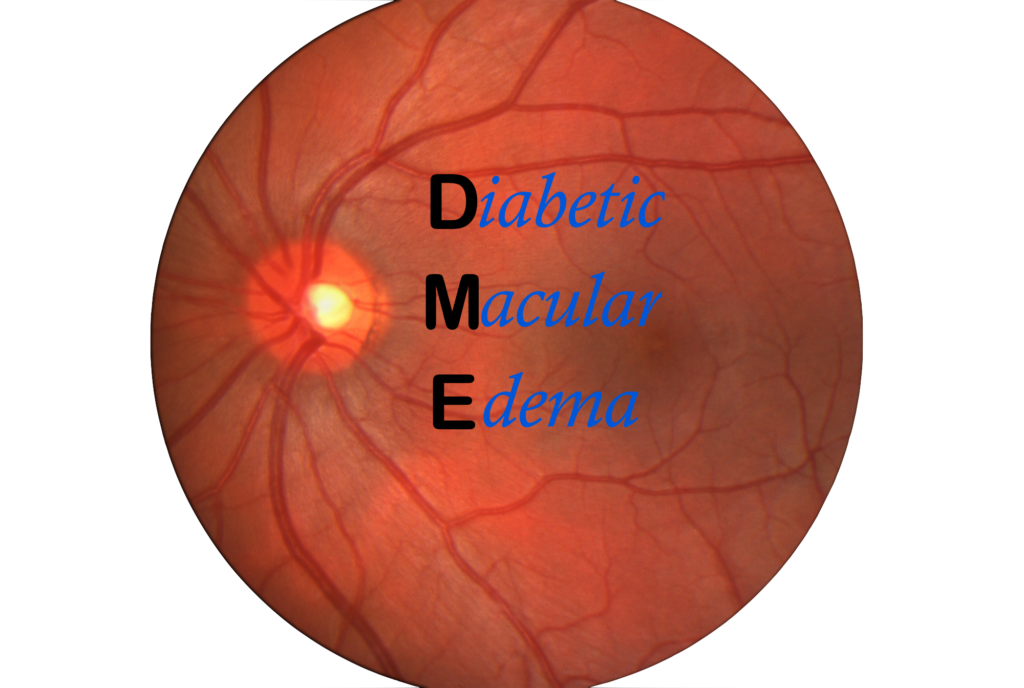 Diabetic Macular Edema | Treatment of Diabetic Retinopathy