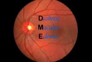 Diabetic Macular Edema | Treatment of Diabetic Retinopathy