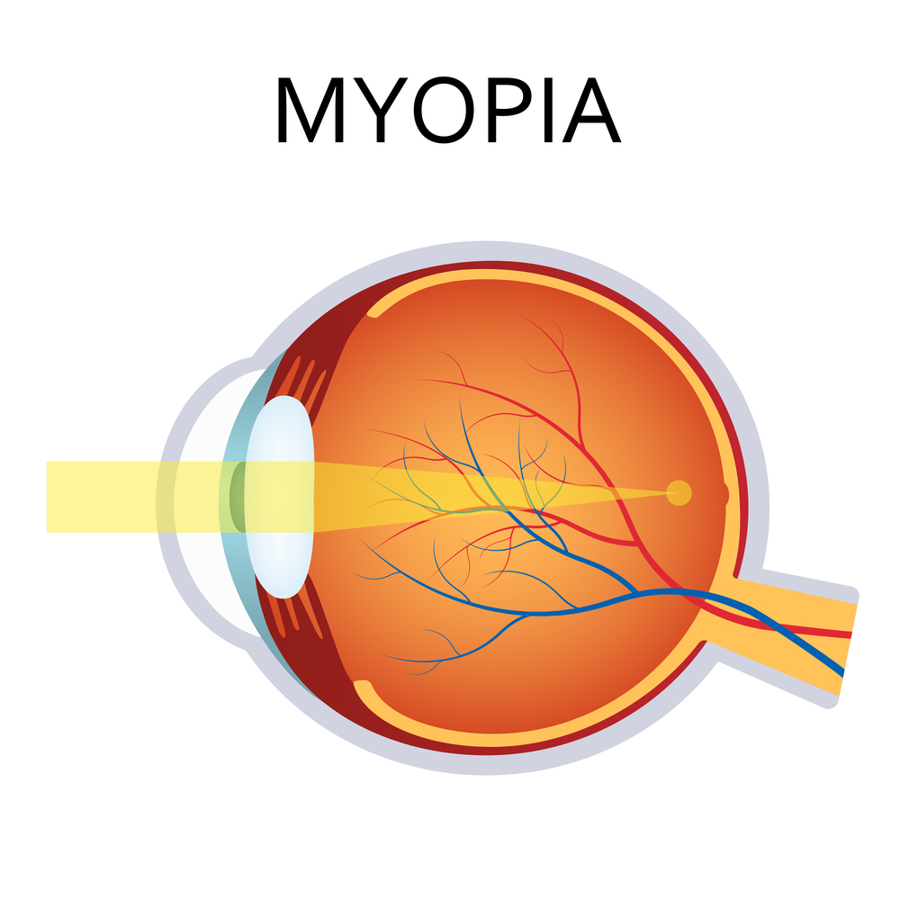 Myopia Treated by LASIK