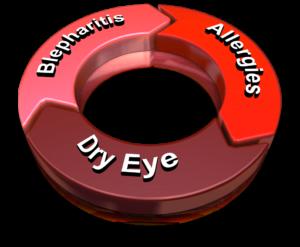 Dry Eye Blepharitis Eye Allergies