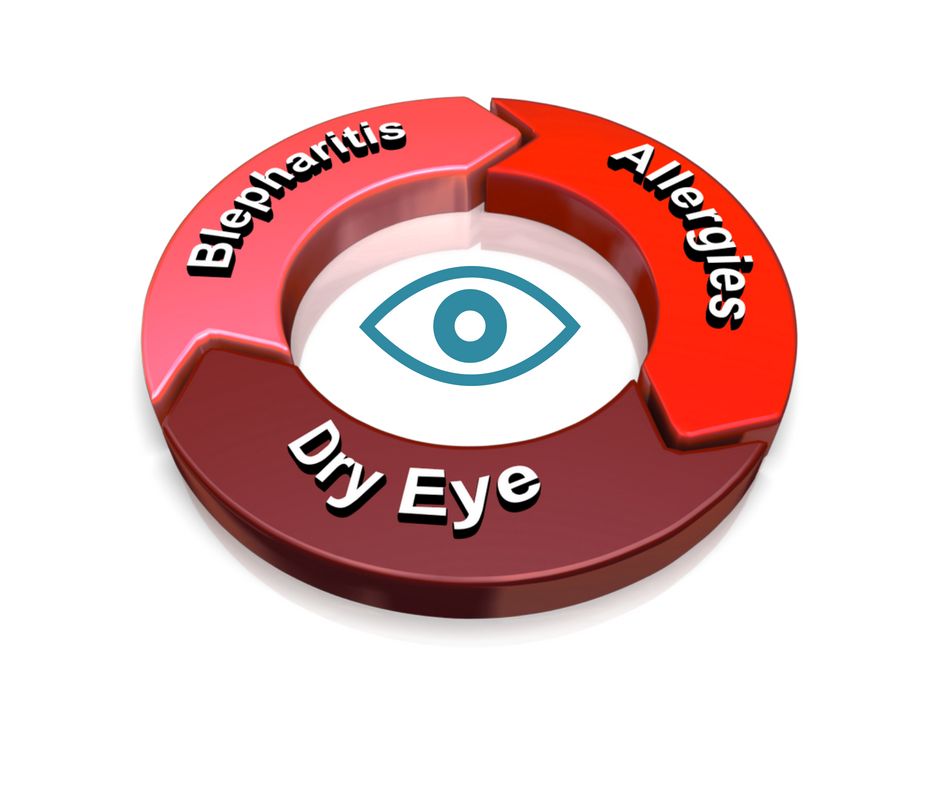 Dry Eye Blepharitis Allergies