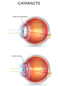 Causes of cataracts | Burlington County Eye Physicians