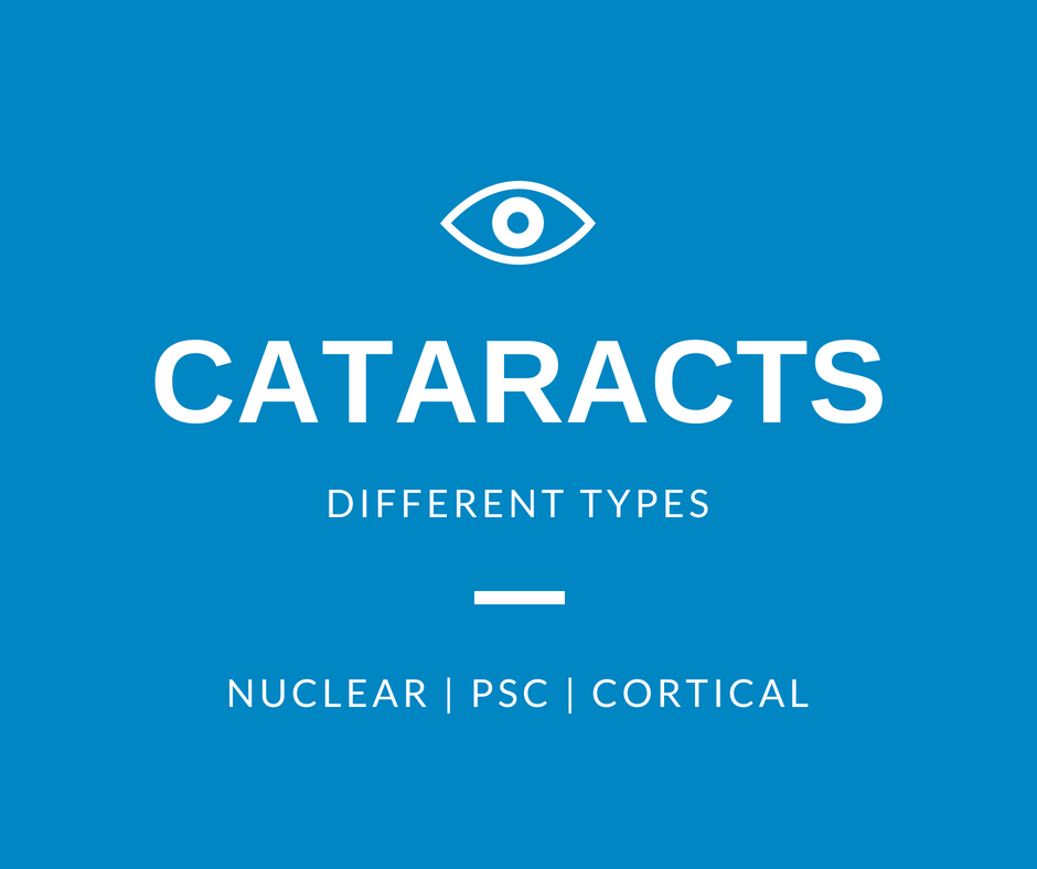 Classification of Cataracts | Burlington County Eye Physicians