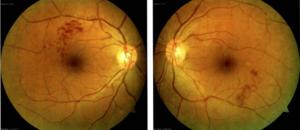 BRVO Branch Retinal Vein Occlusion
