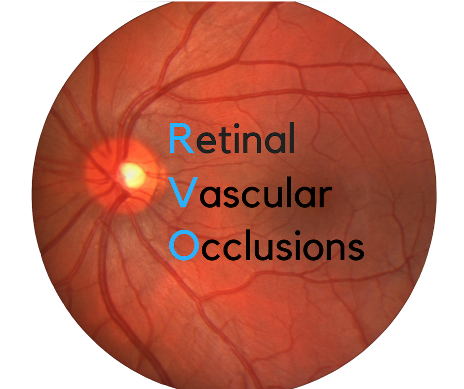 Retinal Vascular Occlusions | Diseases of the Retina
