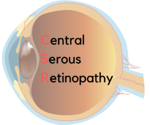Central Serous Retinopathy