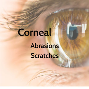 Corneal Abrasions Signs and Symptoms | The Eye Professionals