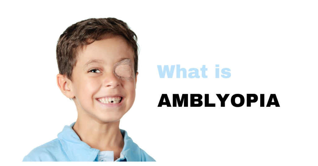 What is Amblyopia?