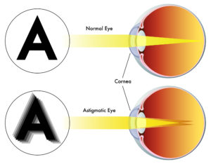 Image of Astigmatism | The Eye Professionals