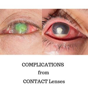 Complications from Contact Lenses | BCEYE