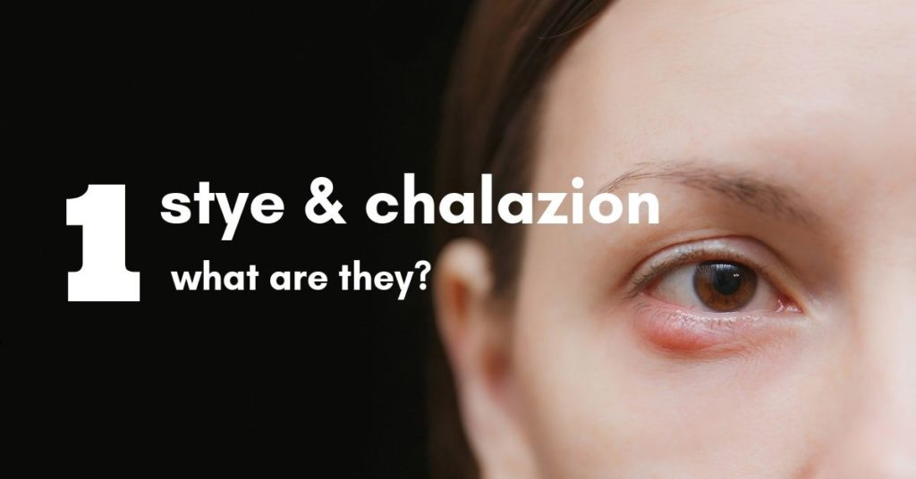 Stye Chalazion Featured Image | The Eye Professionals