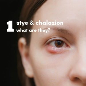 Text image | What is a stye?