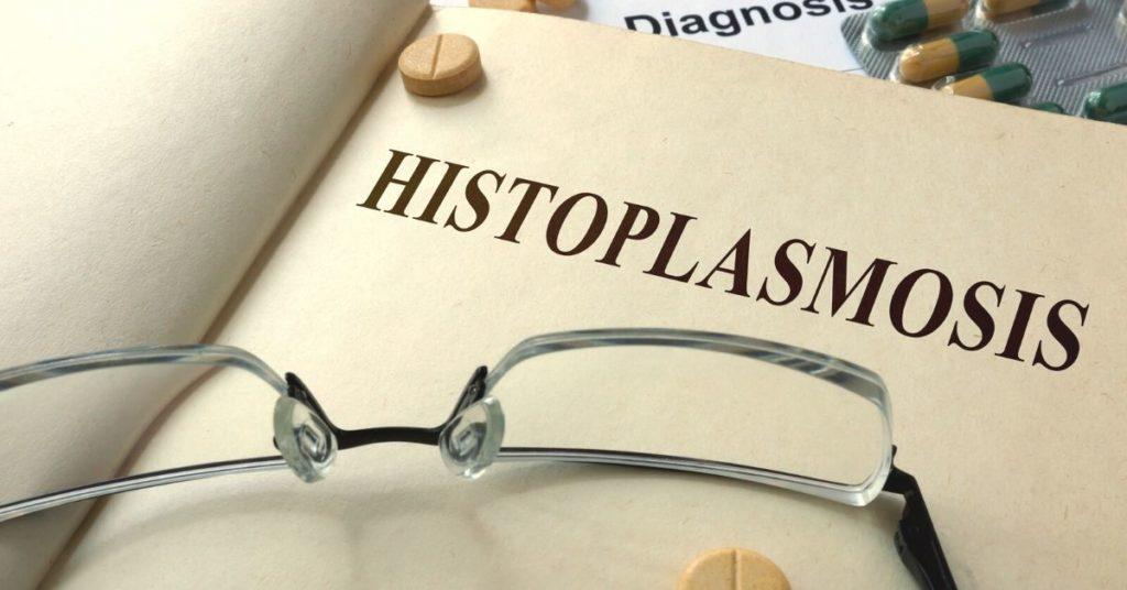 Featured Image Ocular Histoplasmosis