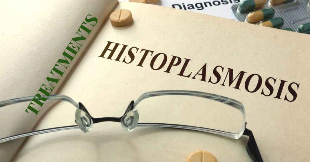 Featured Image for Ocular Histoplasmosis