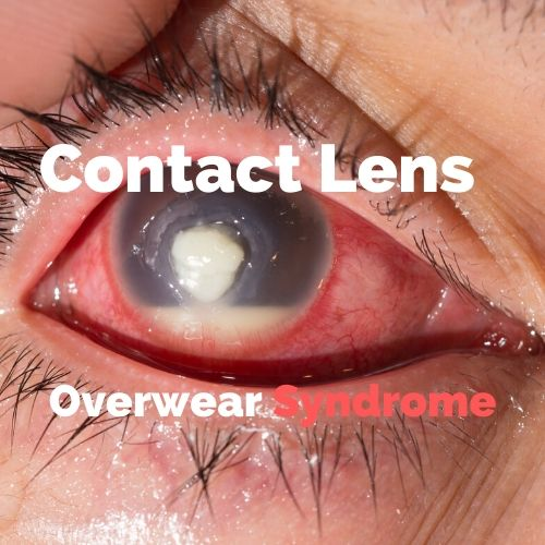 Contact Lens Overwear with Corneal Ulcer