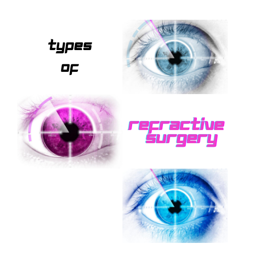 Types of Refractive Surgery