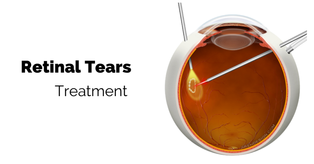Treatment of Retinal Tears | The Eye Professionals
