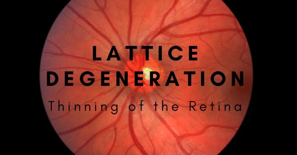 Lattice Degeneration | The Eye Professionals