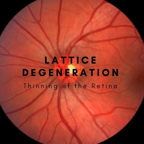 Featured text image for The Eye Professionals | What is Lattice Degeneration?