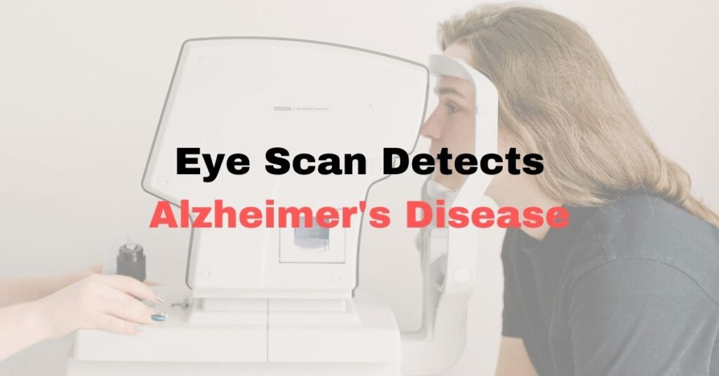 Featured Image OCT Scan and Alzheimer's disease
