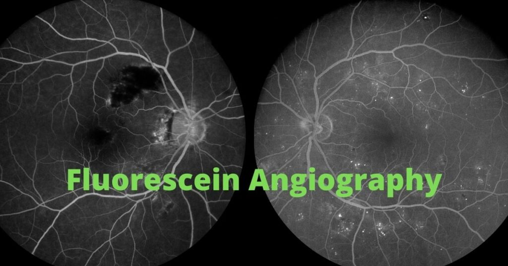 Featured Image Fluorescein Angiography