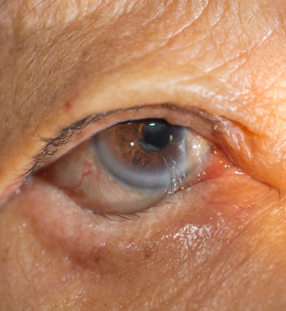 Featured article image of the eye.
