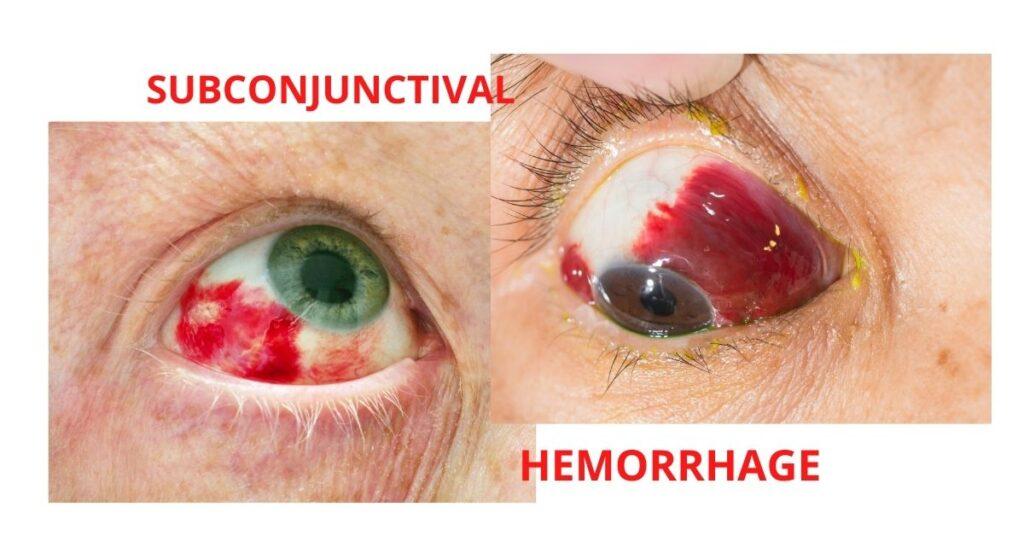 Featured Image Subconjunctival Hemorrhage