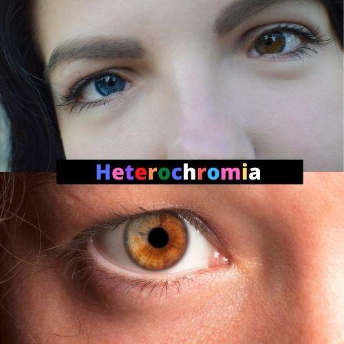 Article image for heterochromia
