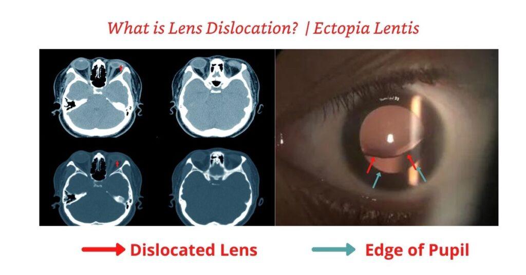 Featured Image Ectopia Lentis