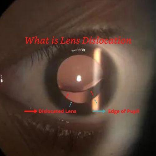 Article Image Lens Dislocation