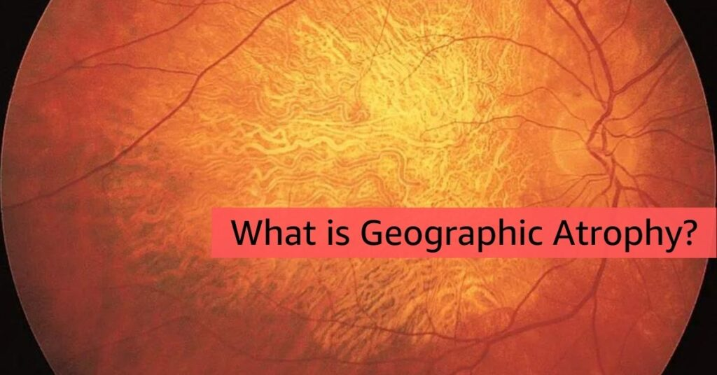 Geographic Atrophy Featured Image